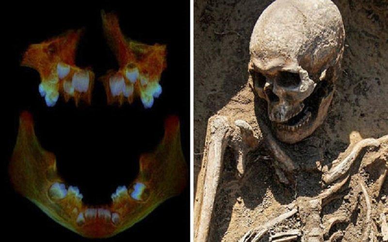 dientes de los esqueletos de los niños